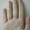 Raportul dintre lungimea inelarului şi a arătătorului, la bărbați, un bun indicator pentru riscul de cancer la prostată